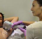 Achselschweiß ein Tabuthema: Mit Mikrowellen genauso effektiv behandeln wie mit einer OP
