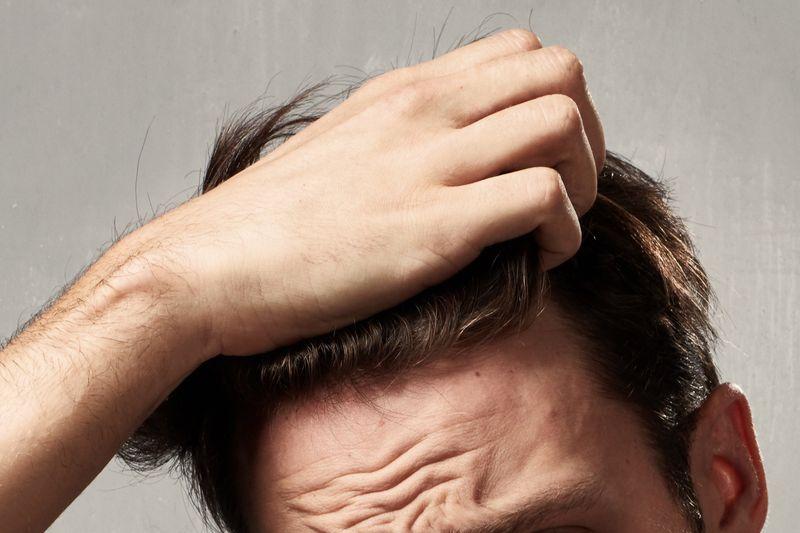 Das Kopfhautproblem bei Männern