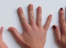 Fingelnägel weisen oft auf verborgene Erkrankungen hin