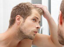 Haarausfall ist ein hoch sensibles Thema